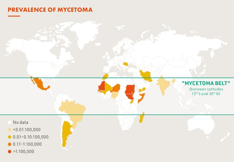 Global burden of mycetoma
