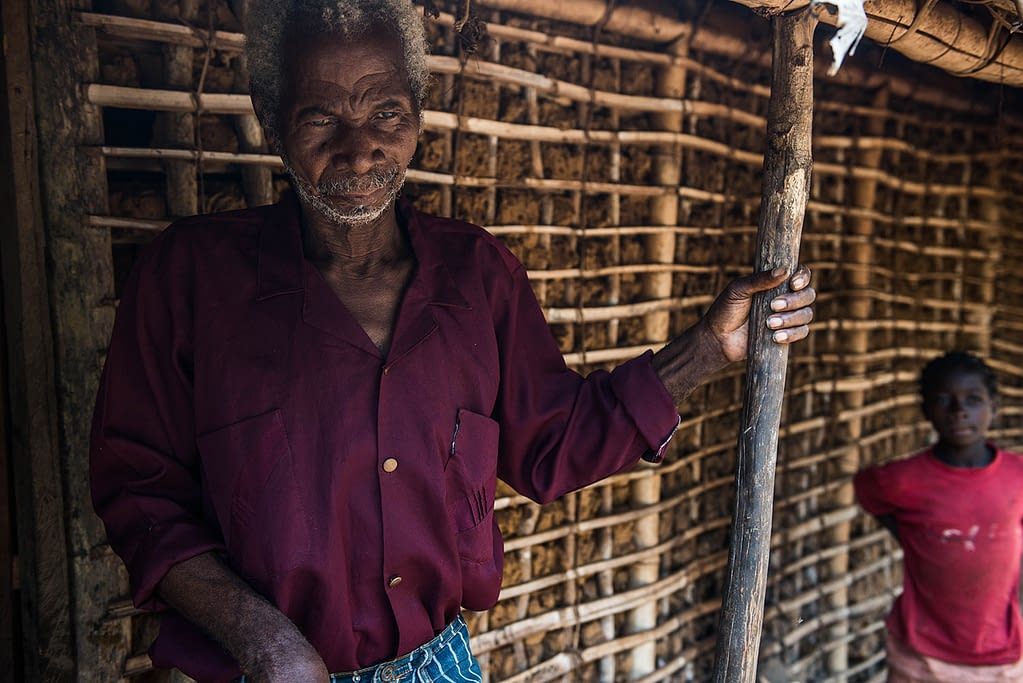 Man with river blindness standing in front of his house